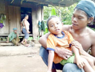 Kisah Si Miskin dari Buleleng-Huni  Gubek Reot di Tengah Hutan, Anak Derita Sakit Saraf