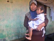 Derita Bocah Elin Meliana: Yatim Piatu, Tubuh Kurus Kering Penuh Koreng  dan Tidak Punya Biaya Berobat