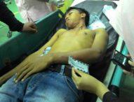 Anggota Sabhara Polda Bali Sekarat Ditusuk