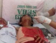 Pria Tak Dikenal Serang Siswa SD di Sabu Raijua dengan Senjata Tajam