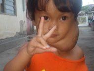 Bocah 3 Tahun Penderita Hemangioma Ini Menunggu Uluran Tangan Anda