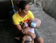 Kondisi Membaik, Bayi Penderita Hydrocephalus Pulang ke Rumahnya