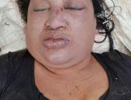 Sebar Foto Korban, Polisi Pastikan Mayat Perempuan dalam Karung Korban Pembunuhan