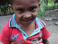 Bocah Ini Enam Tahun Hidup Tanpa Anus, Keluarga Tak Punya Biaya Operasi