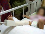Bocah 2,5 Tahun Disiksa Pacar Ibunya Hingga Patah Tulang